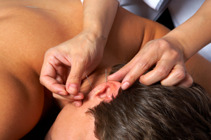 Hands of the doctor doing acupuncture of ear